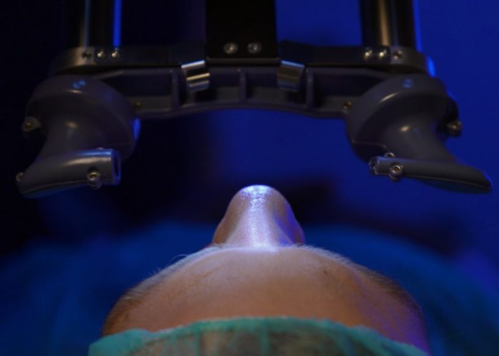 LASIK • Nuova tecnica breve non invasiva