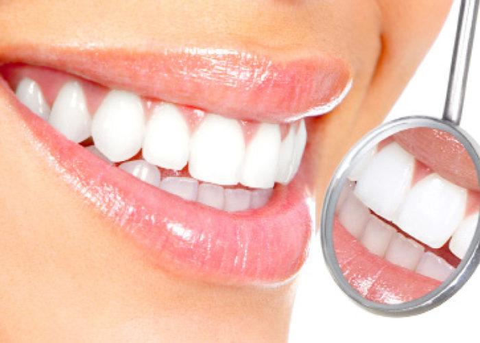 Vuoi ottenere un sorriso bianco e duraturo?